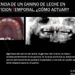 Ausencia de un diente de leche en un niño, ¿cómo actuar?.Tratamiento de ortodoncia infantil
