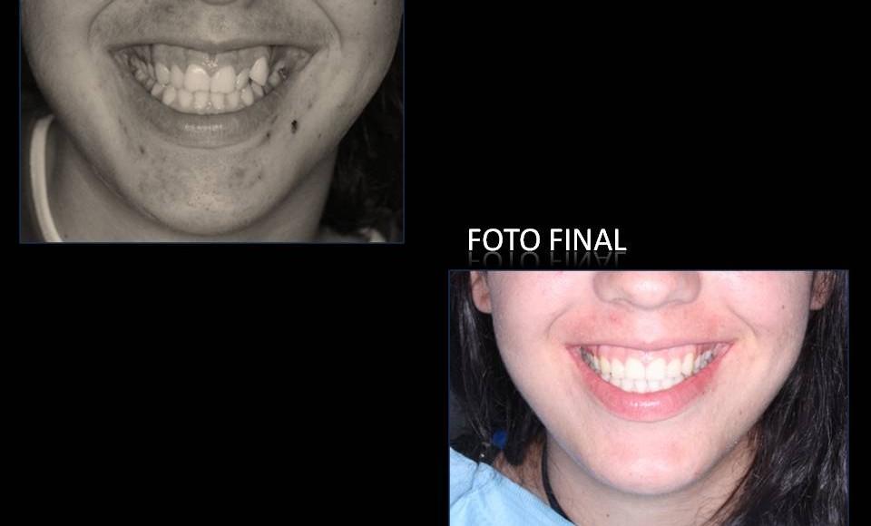 Tratamiento ortodoncia fija paciente adolescente