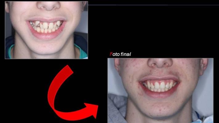 Tratamiento de ortodoncia fija en paciente en crecimiento.Clínica dental Garcon.