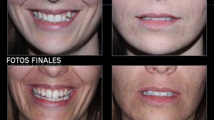 Cambios dentofaciales post.tratamiento de ortodoncia