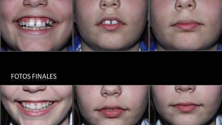 Tratamiento de ortodoncia y ortopedia infantil.