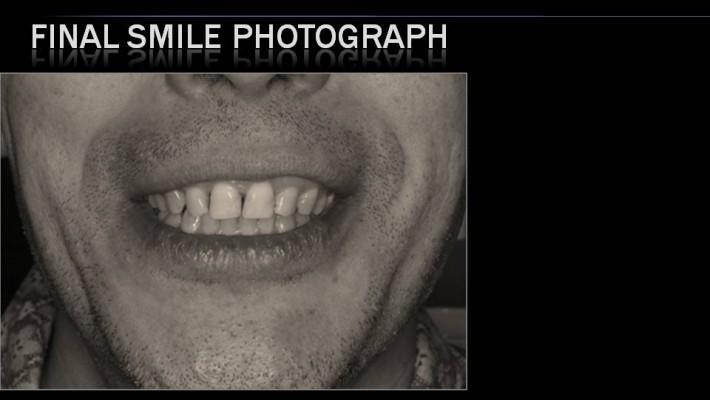 Tratamiento de ortodoncia en paciente adulto.