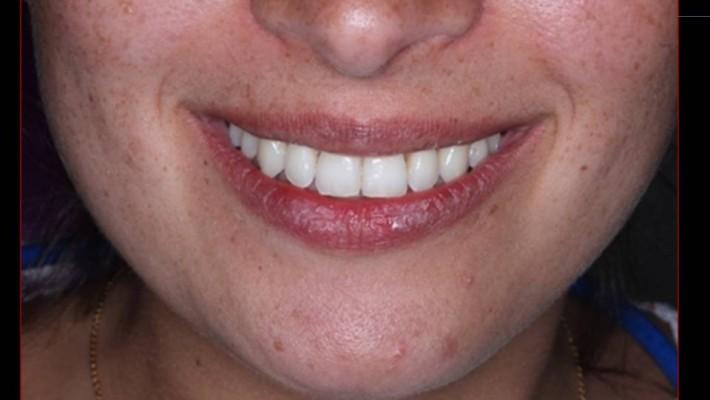 Estética dental; sonrisa armónica.Ortodoncia Garcon