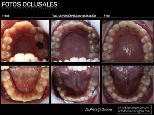 smaali-hasna-fotos-oclusales-evolucion