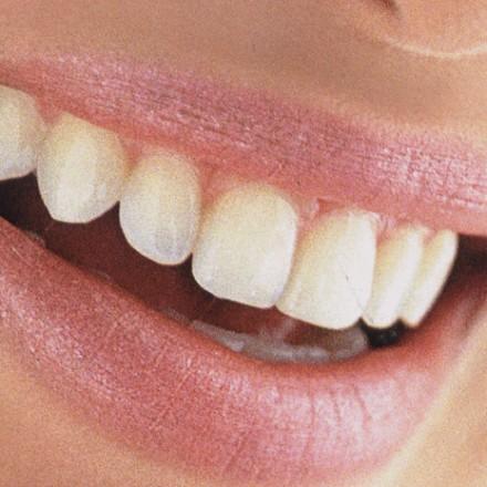 Salud e higiene Oral