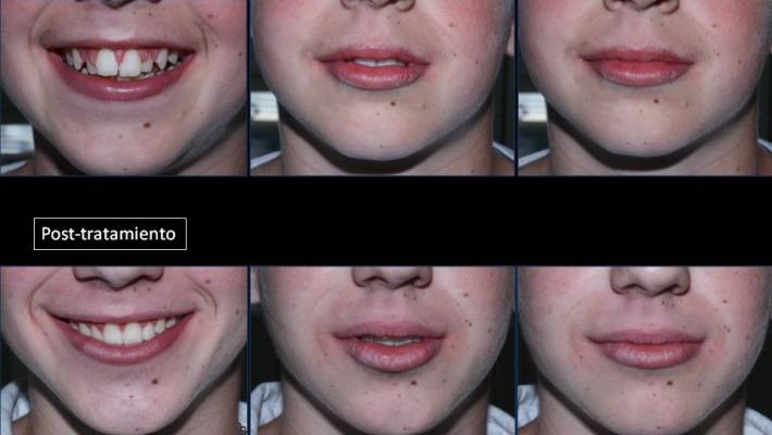 Tratamiento ortodoncia. Técnica Invisalign