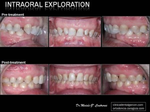 intraoral-exploration-post-treatment