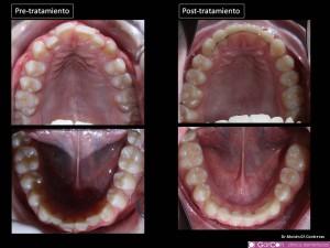 Fotos oclusales.  Expansión dentoalveolar del arco dentario y alineamiento dentario.