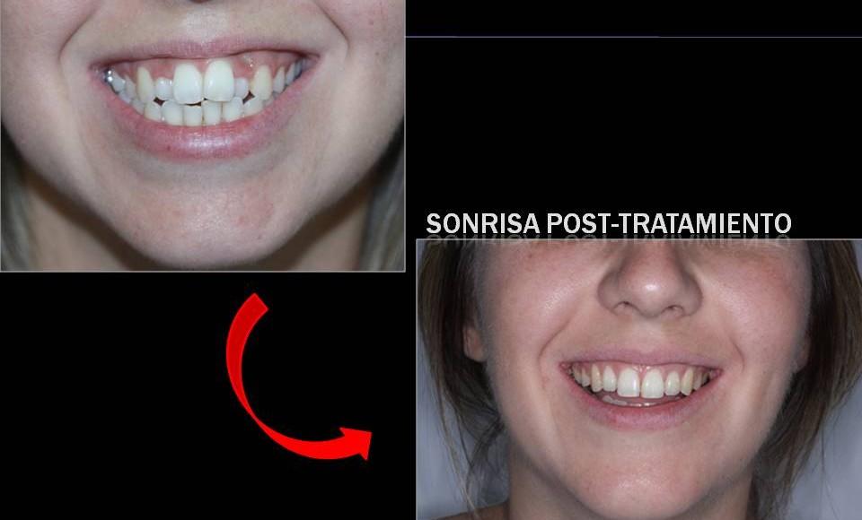 Tratamiento de ortodoncia fija paciente adulta